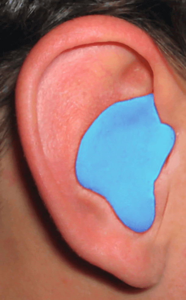 Silicone Putty Earplugs